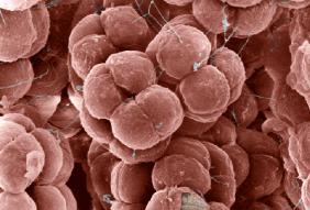 3.1.7_archaea_4